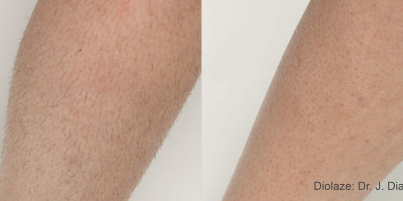 laser hair removal pic 1