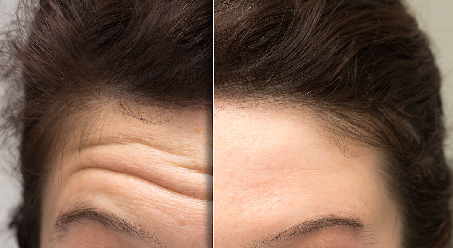 What To Expect From Botox For First Time Botox Users